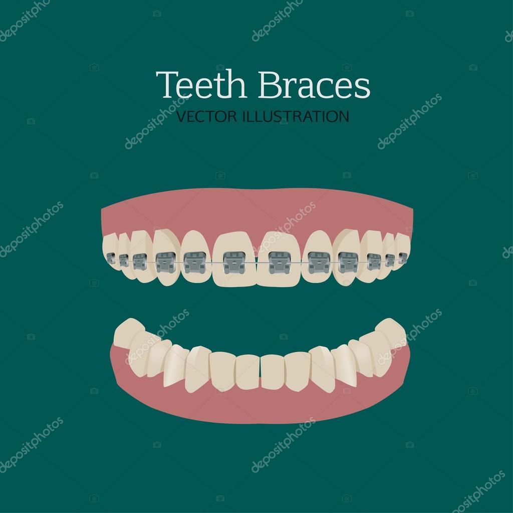 Teeth braces ve — Stock Vector © annyart #113046190