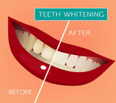 Fotografie Vektor-Teeth Whitening