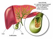 Illustration of the section of the gallbladder with gallstones.