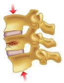 příznaky vertebrální kompresní zlomeniny
