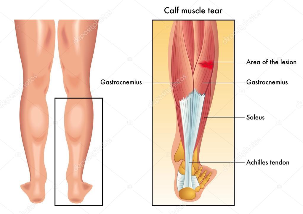 Ilustración de los síntomas del músculo de la pantorrilla del rasgón ...