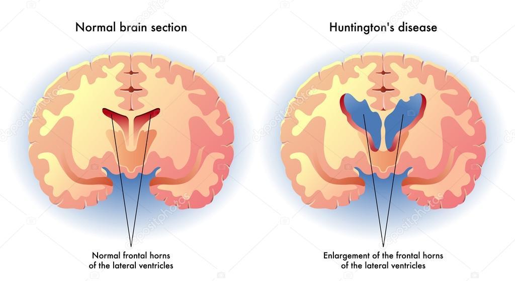 the manifestations of huntingtons disease in human beings Animal disease - a disease that typically does not affect human beings 2  huntingtons chorea  the main manifestations of wilson's disease.