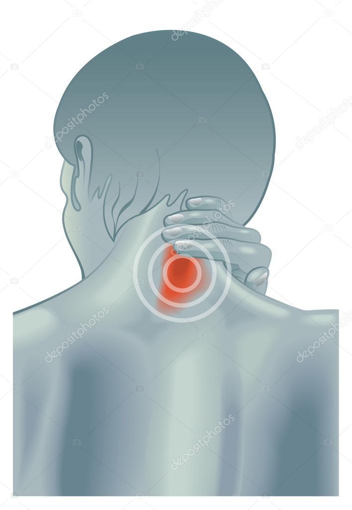 肩こりの症状のイラスト ストックベクター Rob3000 106786942