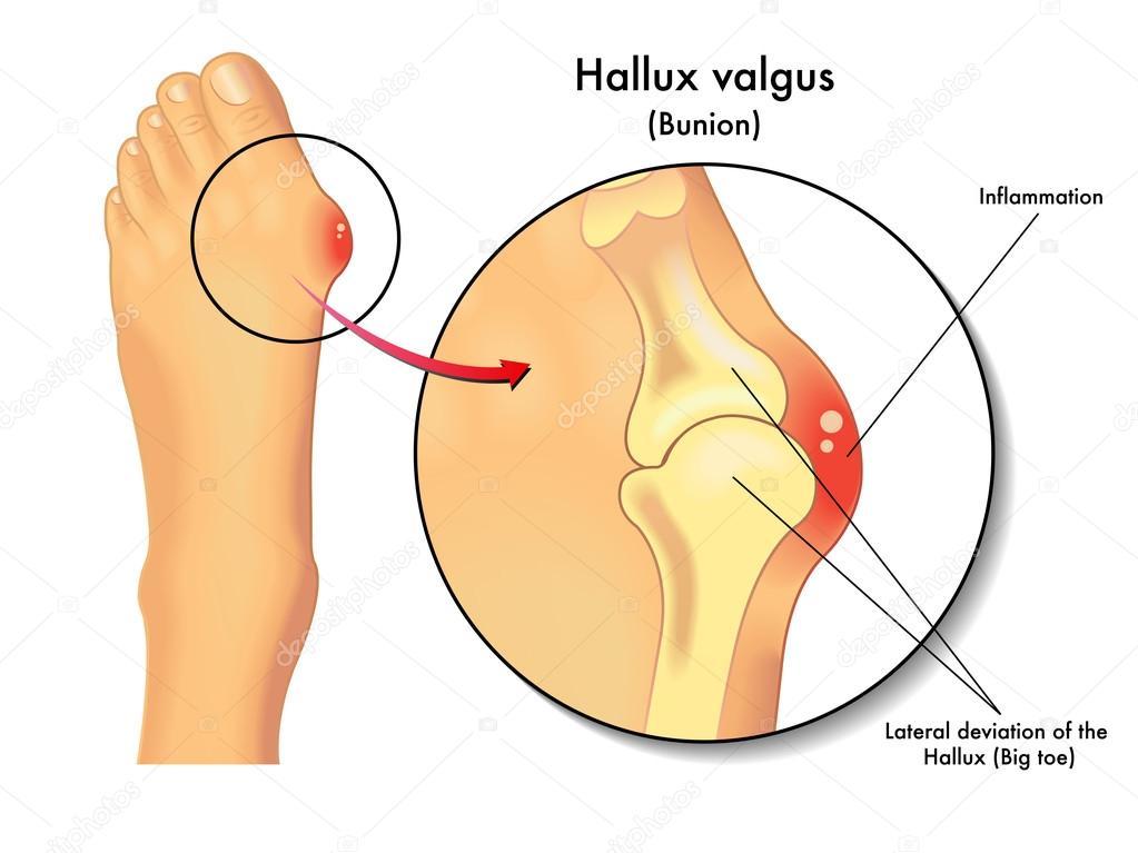 hallux valgus. Valgus deformity toe — Stock Vector © rob3000 #120837460