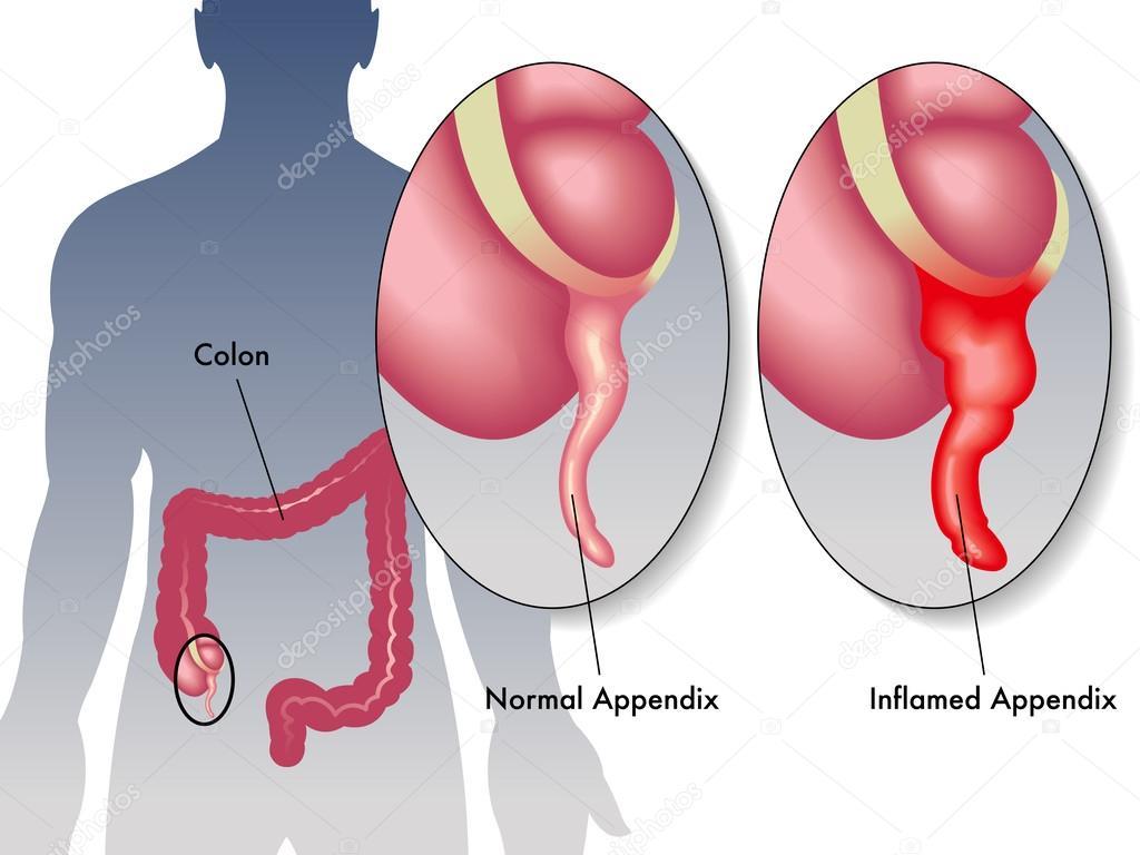 La apendicitis es inflamación del Apéndice — Vector de stock ...