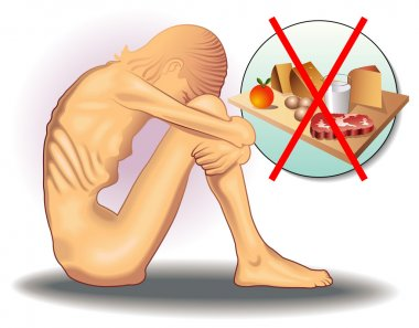 illustration of girl with anorexia