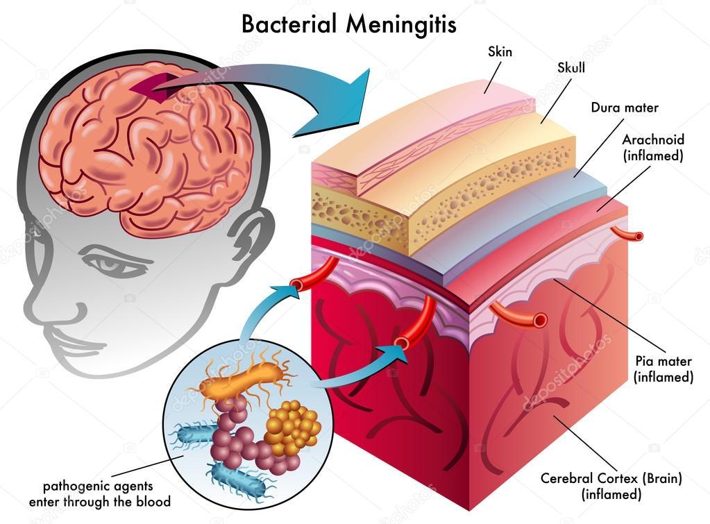 Bakterielle Meningitis — Stockvektor © rob3000 #59877773