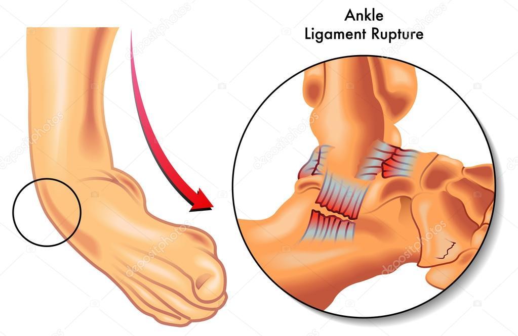 Ruptura de ligamentos de tobillo — Archivo Imágenes Vectoriales ...