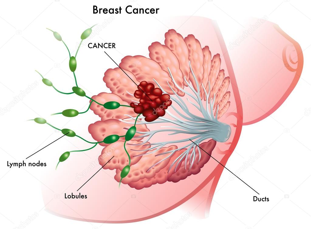 Breast cancer stock vector
