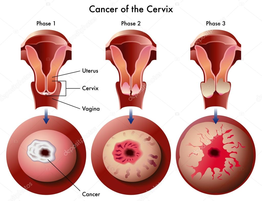 Cervical cancer — Stock Vector © rob3000 #59877975
