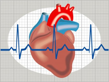 Cardiac arrhythmia stock vector