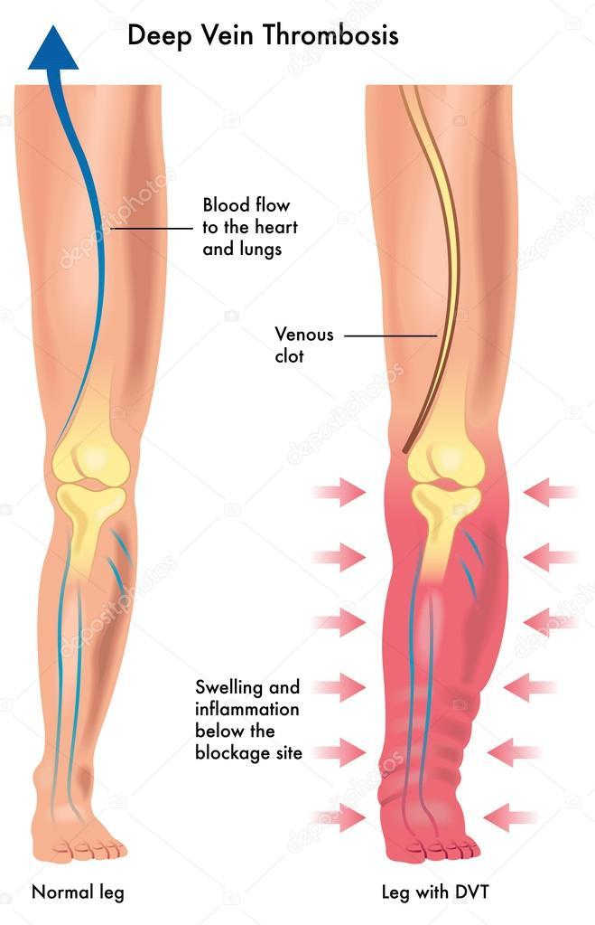 trombosis venosa profunda — Vector de stock © rob3000 #60338509