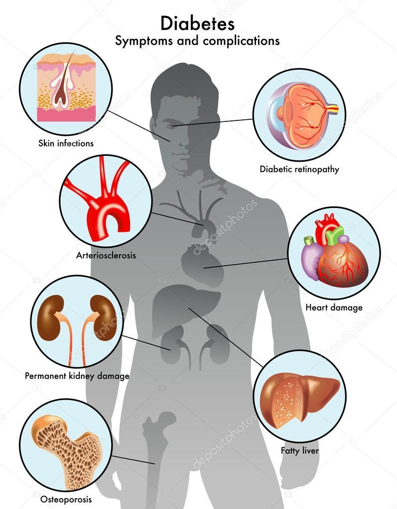 Häufige Begleiterscheinung bei Krebs und Diabetes