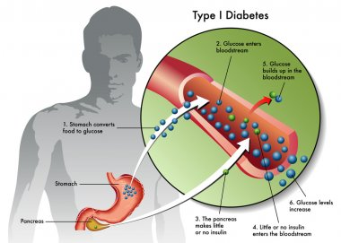 Type 1 Diabetes Labeled
