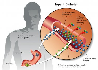 Types of Diabetes.