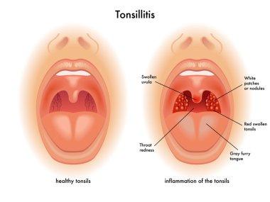 Detailed human Tonsillitis