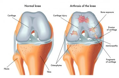 Human Arthrosis of knee