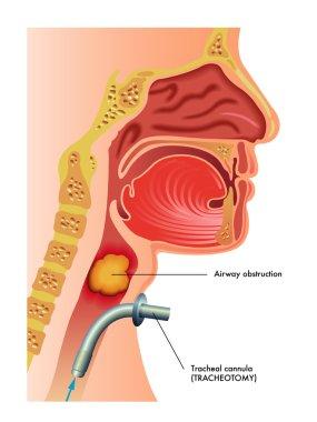 Detailed human Tracheotomy