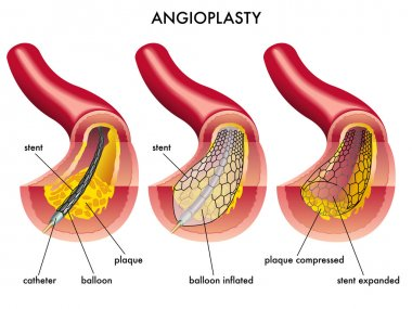 Stent angioplasty on a white background