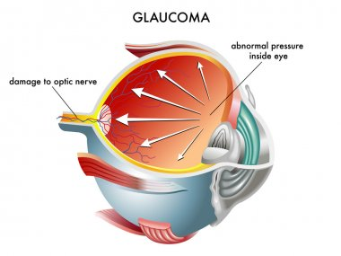 Glaucoma eye anatomy