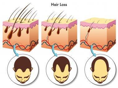 Hair loss process