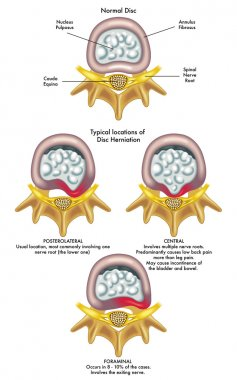 Injury to the spinal nerve