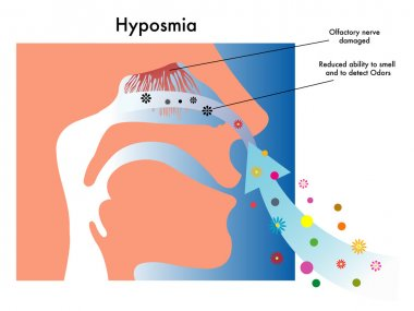Medical illustration of symptoms of hyposmia