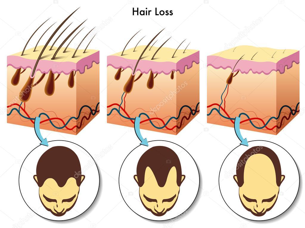 alopecia diagram alopecia treatment diagram hair loss process — stock vector © rob3000 #65090937