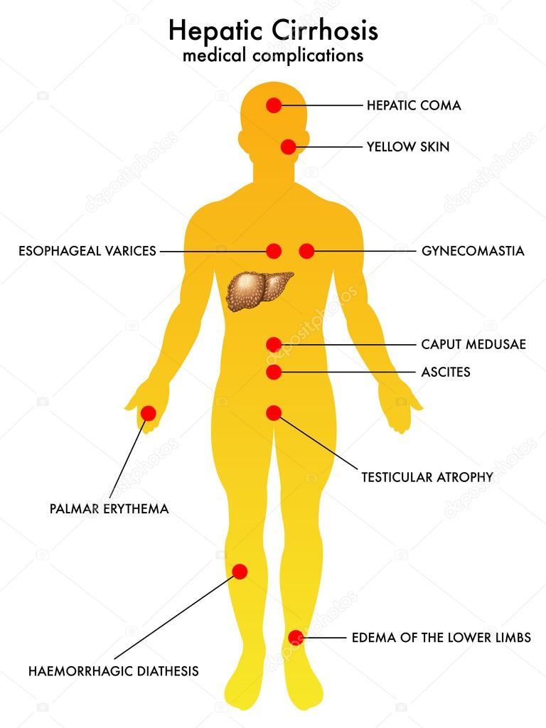 Cirrhosis of the liver — Stock Vector © rob3000 #65091497