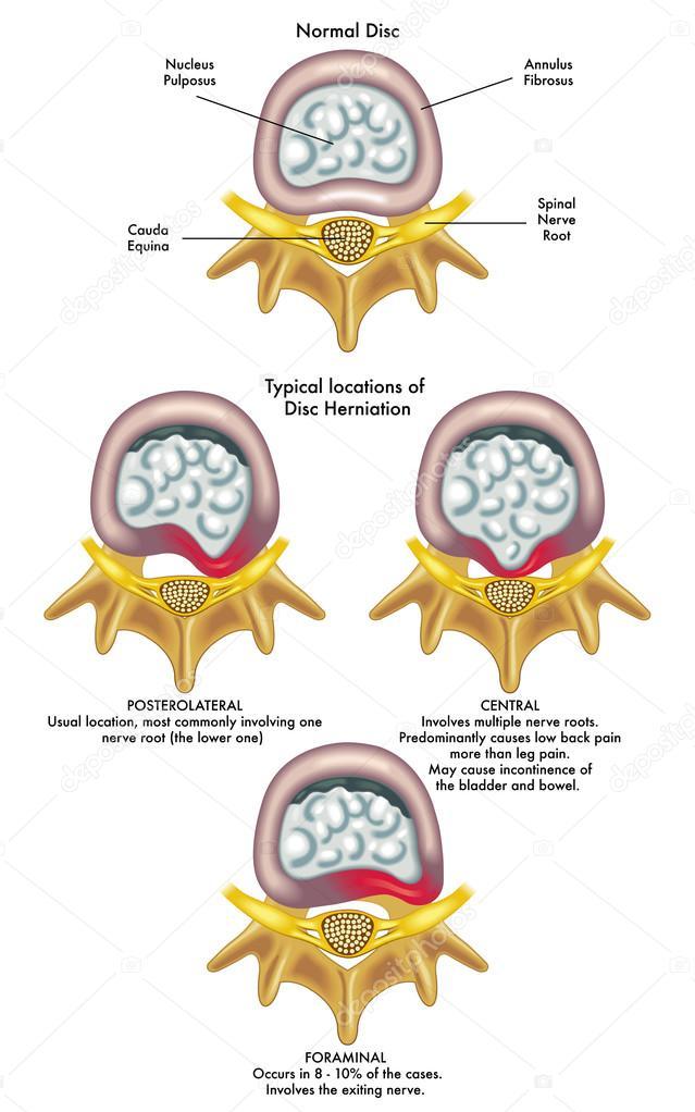 Schädigung der Spinalnerven — Stockvektor © rob3000 #65091945