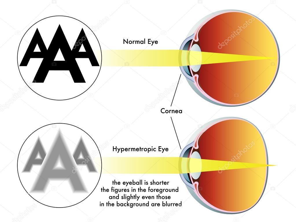 glaucom hipermetrop