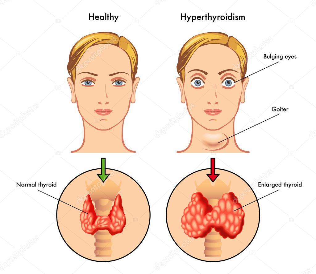 Anatomía de la glándula tiroides, epiglotis, tráquea — Vector de ...