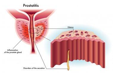 Diplococcci prostatitis