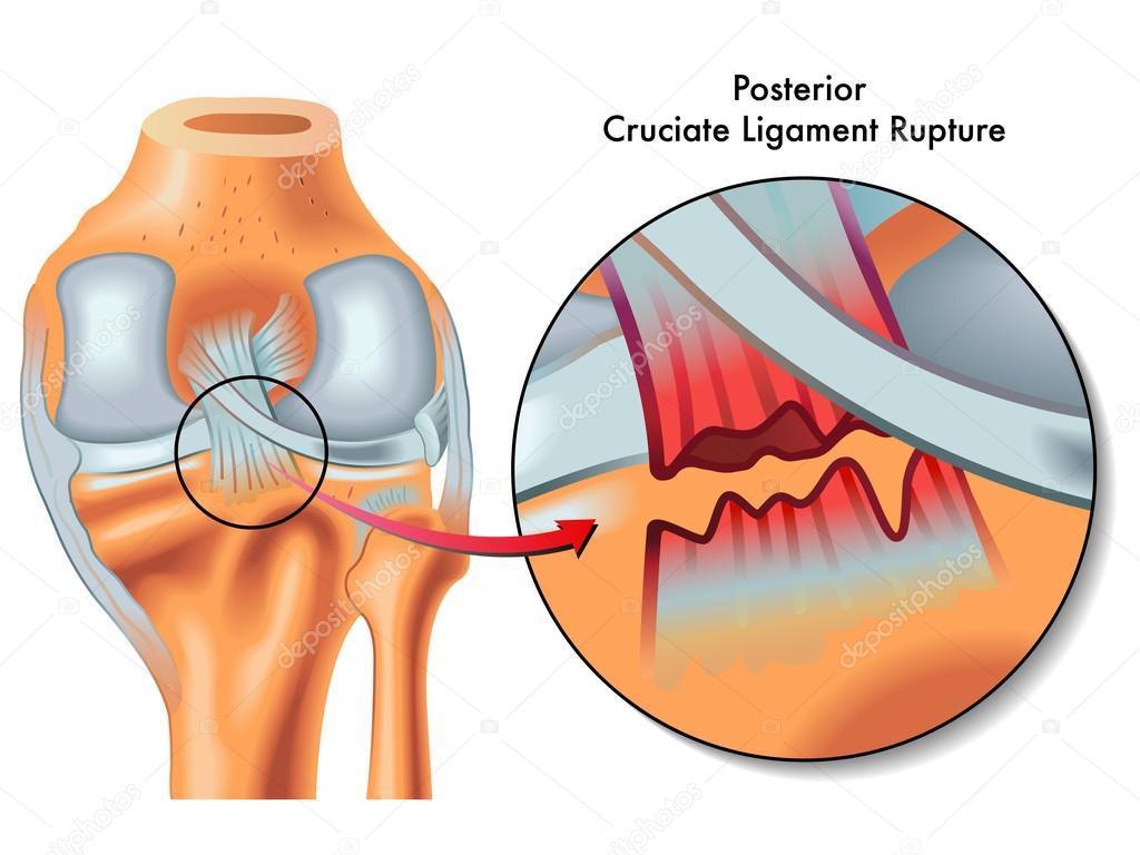 Posterior cruciate ligament ruptur — Stock Vector © rob3000 #65937203