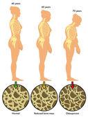 barevné schéma osteoporóza