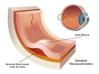 Subretinal neovascularization scheme