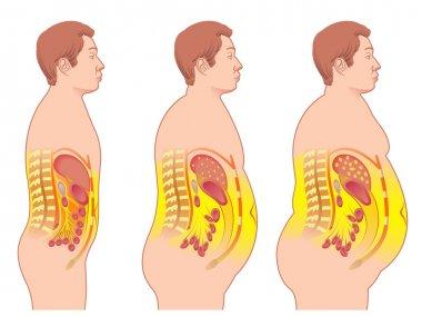 colorful Obesity scheme