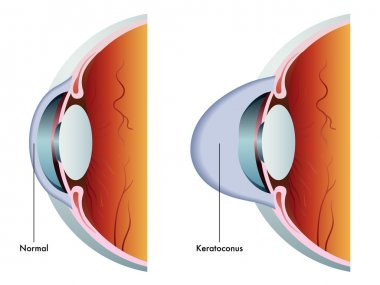 colorful Keratoconus scheme