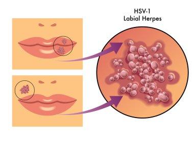 Labial herpes scheme