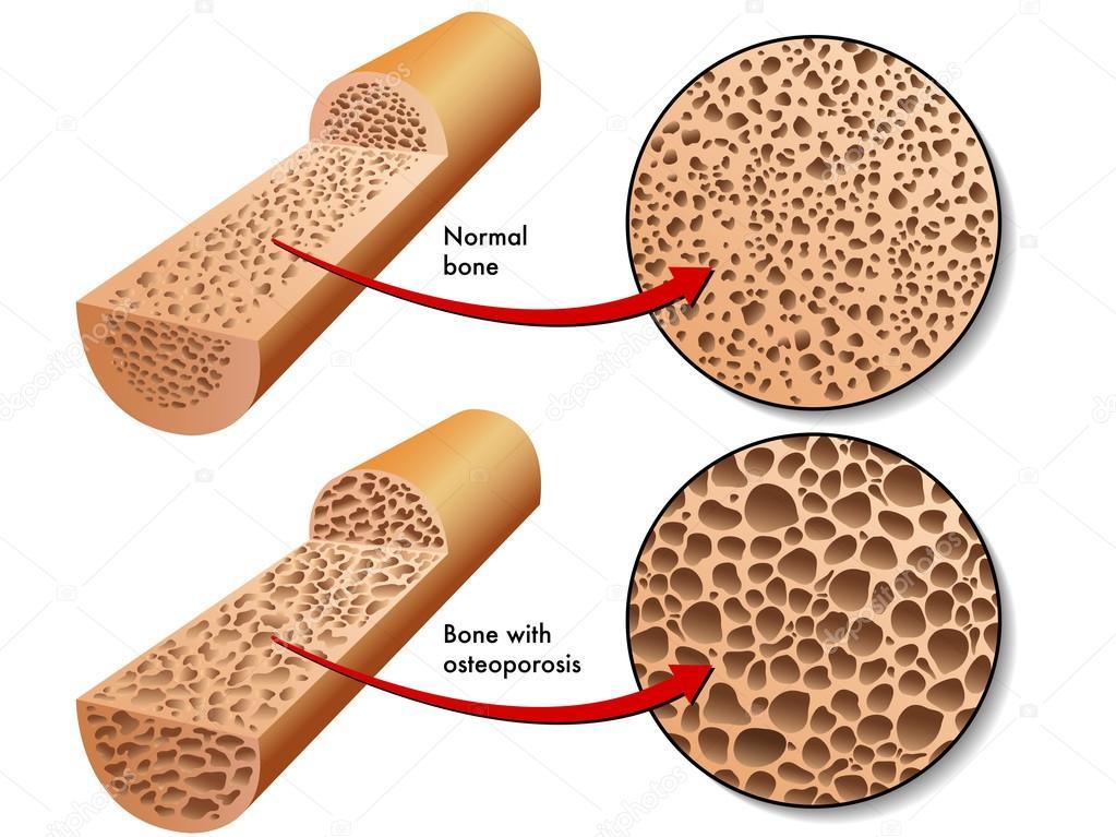 Résultats de recherche d'images pour «ostéoporose»