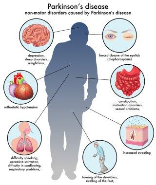 Parkinson's Disease scheme