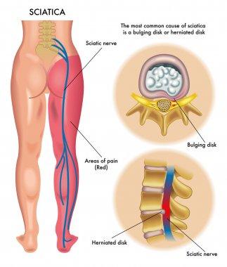 Human sciatica scheme