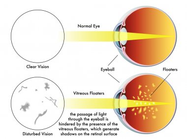 Human vitreous floaters