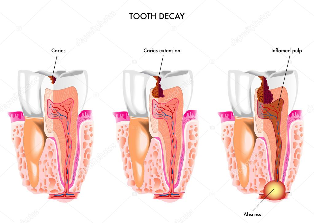 Tooth decay anatomy — Stockvector © rob3000 #76383507