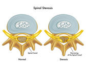 Fotografie Medical illustration of the effects of spinal stenosis