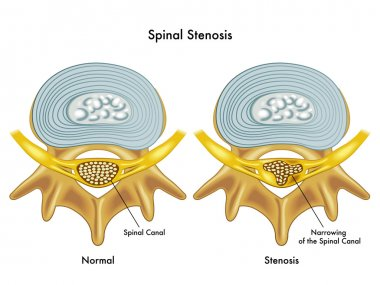 Medical illustration of the effects of spinal stenosis
