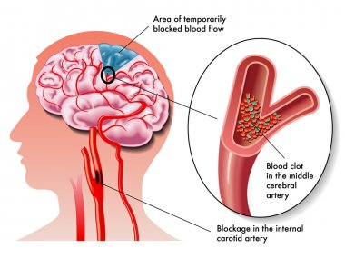 effects of the TIA (transient ischemic attack)