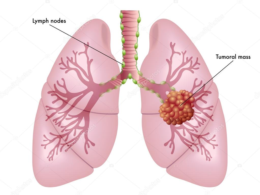 illustration of the symptoms of lung cancer stock vector © rob3000 simple diagram of nervous system simple medical illustration of the symptoms of lung cancer vector by rob3000