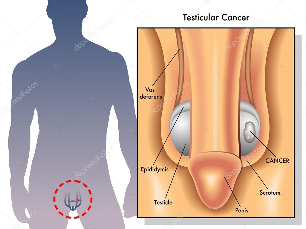 Medical Illustration of the effects of testicular cancer — Stock ...
