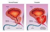 Medicínské ilustrace účinků prostatitida